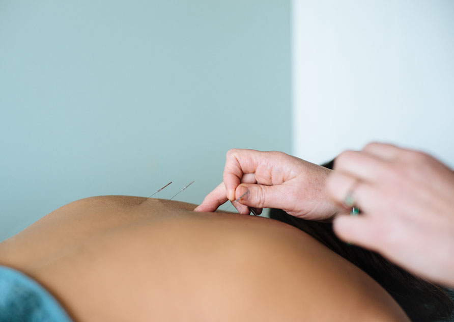 Services - Acupuncture, Massage, Fertility, Paediatric, NST Bowen