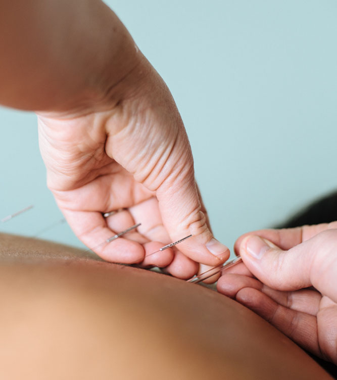Acupuncture Clinic in Macleod Melbourne Victoria - Acupuncturist