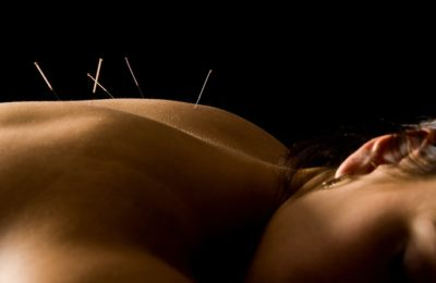 Flow-On Massage is now Renew Acupuncture Clinic Macleod Melbourne