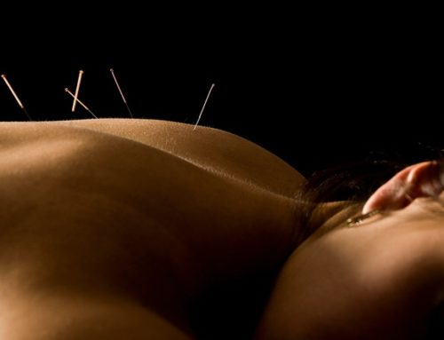 Flow-On Massage is now Renew Acupuncture Clinic