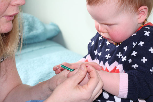 toddler having an acupuncture in macleod victoria australia