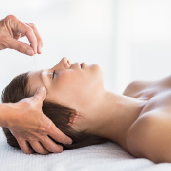 Acupuncture for anxiety Melbourne